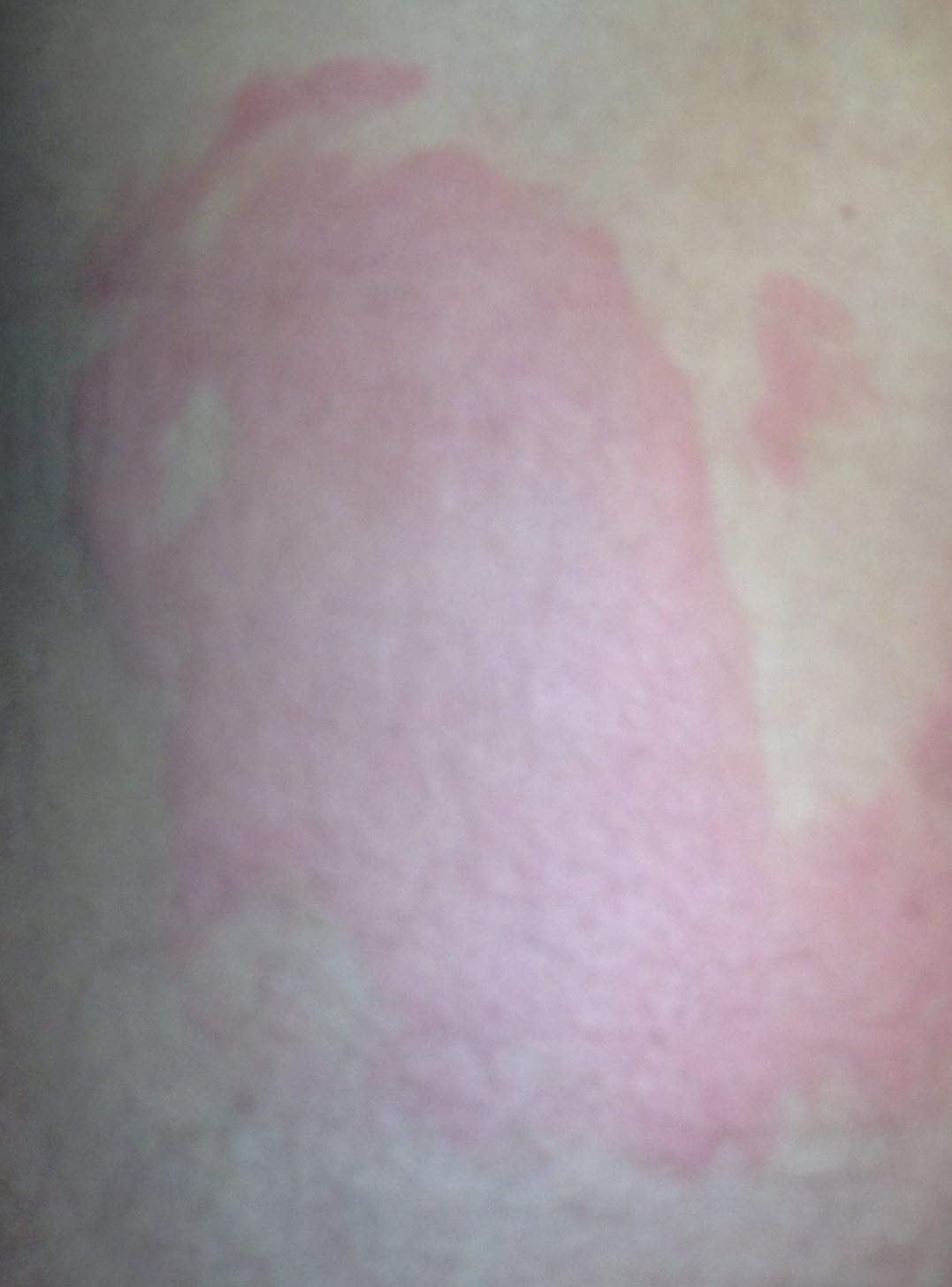 Beware How I Got Frostbite On A Hot Summer Day How